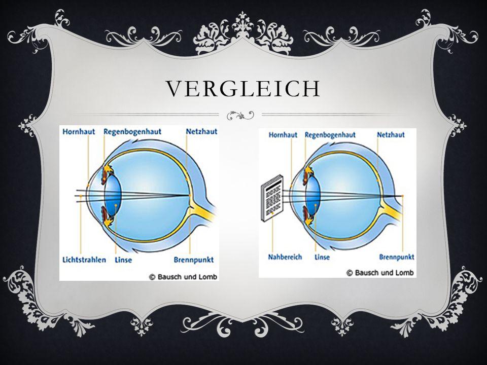 VERGLEICH