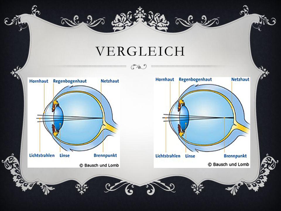 WEITSICHTIGKEIT (HYPEROPIE)  Bei einem weitsichtigen Auge ist der Augapfel verkürzt, dadurch werden die Lichtstrahlen erst hinter der Netzhaut gebündelt und erreichen sie hat ideal vereint.
