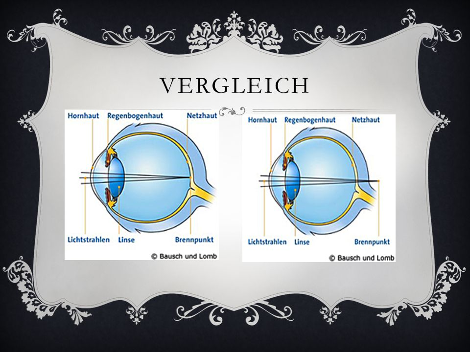 STABSICHTIGKEIT (ASTIGMATISMUS)  Eine Stabsichtigkeit ist vorhanden, wenn eine Schiefe zwischen der Hornhaut und der Linse auftritt.