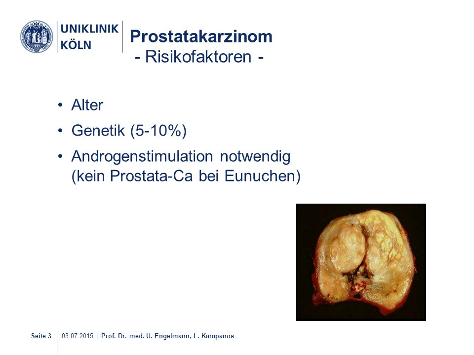 Seite 3 03.07.2015 | Prof. Dr. med. U. Engelmann, L. Karapanos Prostatakarzinom - Risikofaktoren - Alter Genetik (5-10%) Androgenstimulation notwendig