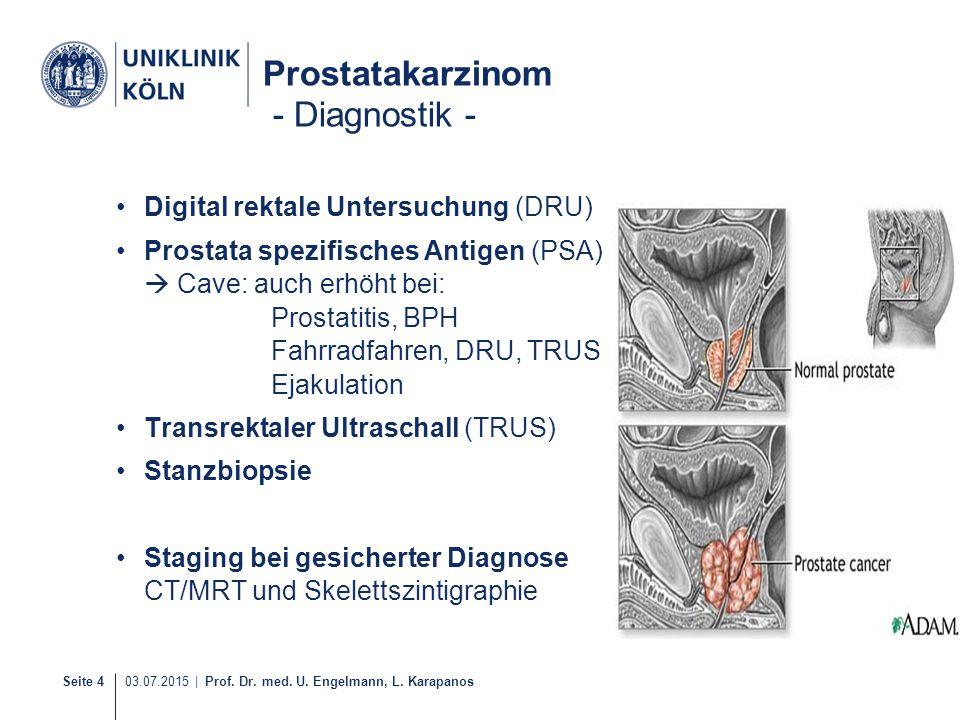 Seite 4 03.07.2015 | Prof. Dr. med. U. Engelmann, L. Karapanos Prostatakarzinom - Diagnostik - Digital rektale Untersuchung (DRU) Prostata spezifische