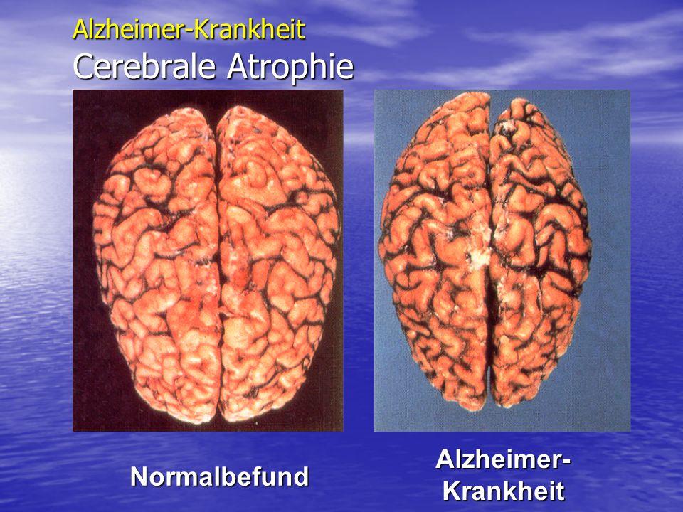 Alzheimer-Krankheit Cerebrale Atrophie Normalbefund Alzheimer- Krankheit