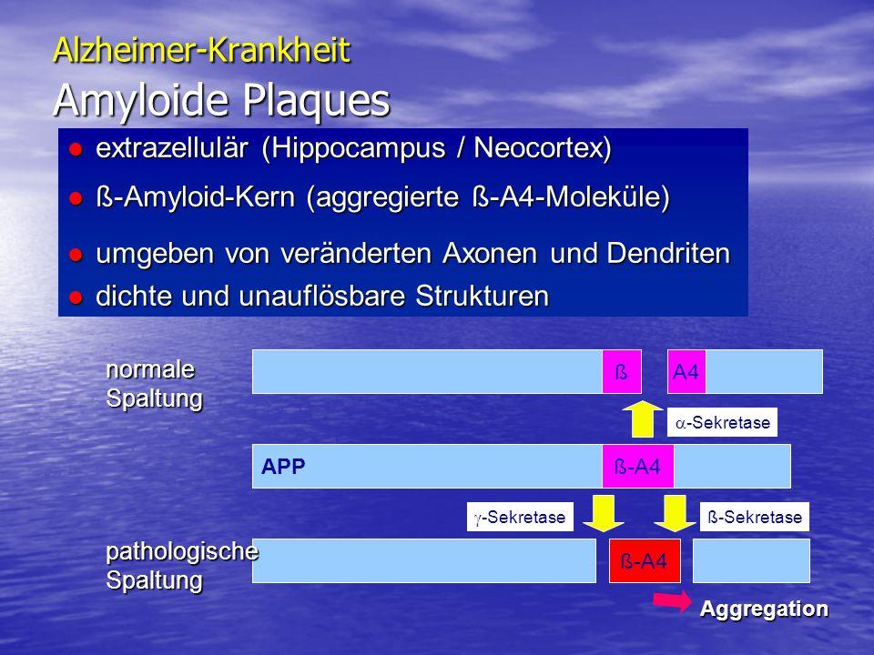 Alzheimer-Krankheit Amyloide Plaques extrazellulär (Hippocampus / Neocortex) extrazellulär (Hippocampus / Neocortex) ß-Amyloid-Kern (aggregierte ß-A4-