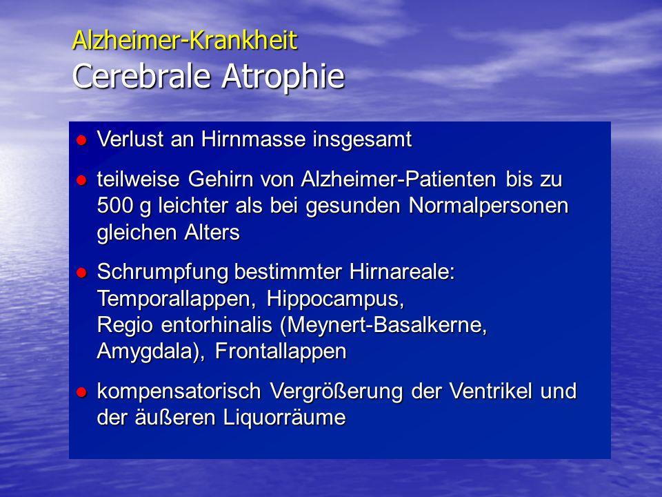 Alzheimer-Krankheit Cerebrale Atrophie Verlust an Hirnmasse insgesamt Verlust an Hirnmasse insgesamt teilweise Gehirn von Alzheimer-Patienten bis zu 5