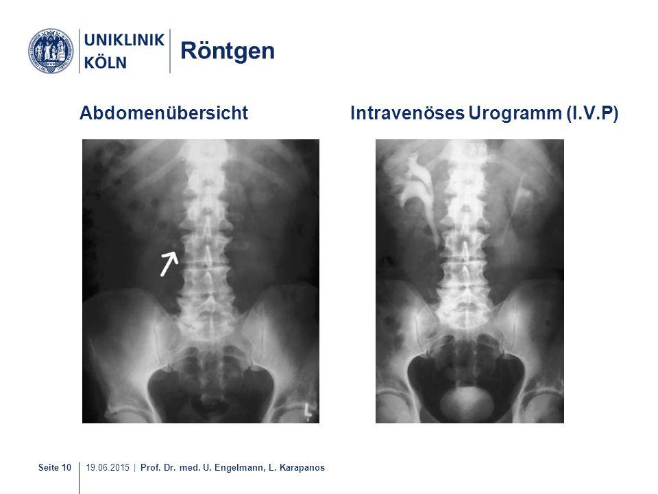 Seite 10 19.06.2015 | Prof. Dr. med. U. Engelmann, L. Karapanos AbdomenübersichtIntravenöses Urogramm (I.V.P) Röntgen