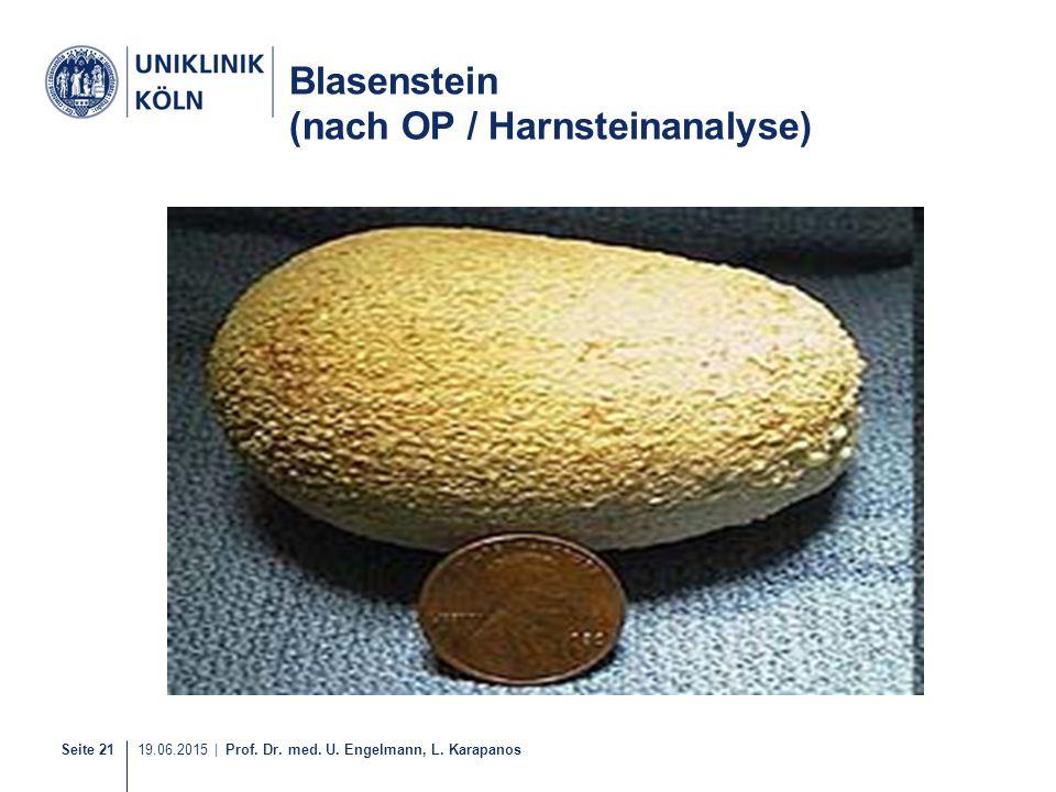 Seite 21 19.06.2015 | Prof. Dr. med. U. Engelmann, L. Karapanos Blasenstein (nach OP / Harnsteinanalyse)