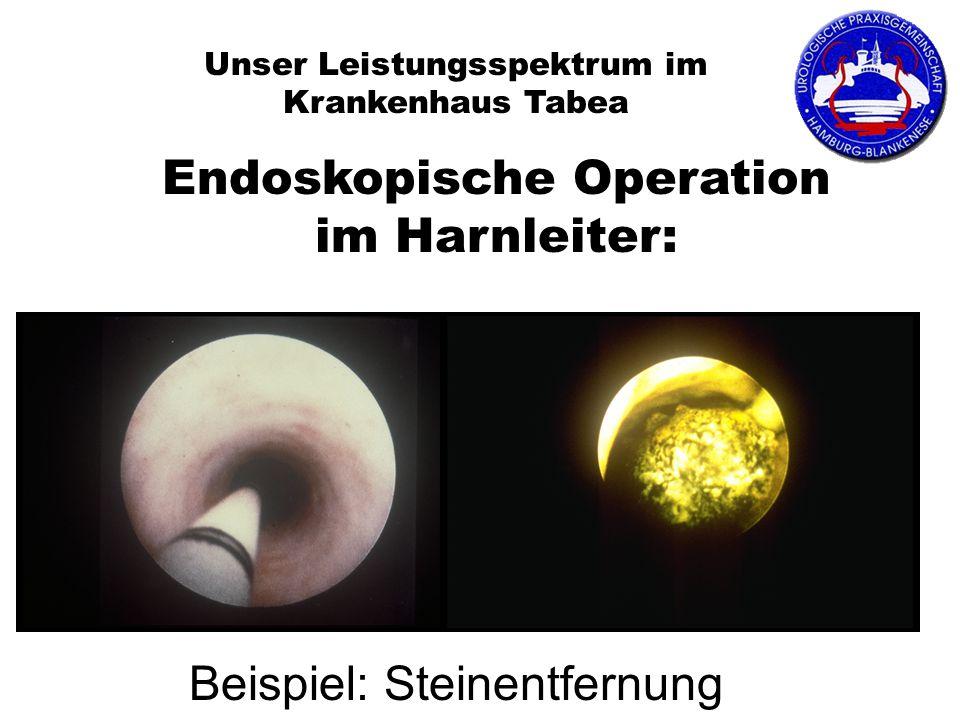 Unser Leistungsspektrum im Krankenhaus Tabea Endoskopische Operation im Harnleiter: Beispiel: Steinentfernung