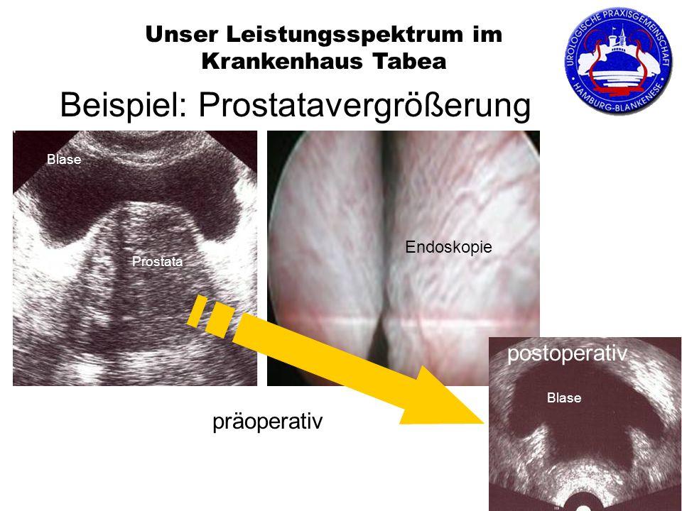 Prostata Endoskopie Blase postoperativ Blase Unser Leistungsspektrum im Krankenhaus Tabea Beispiel: Prostatavergrößerung präoperativ