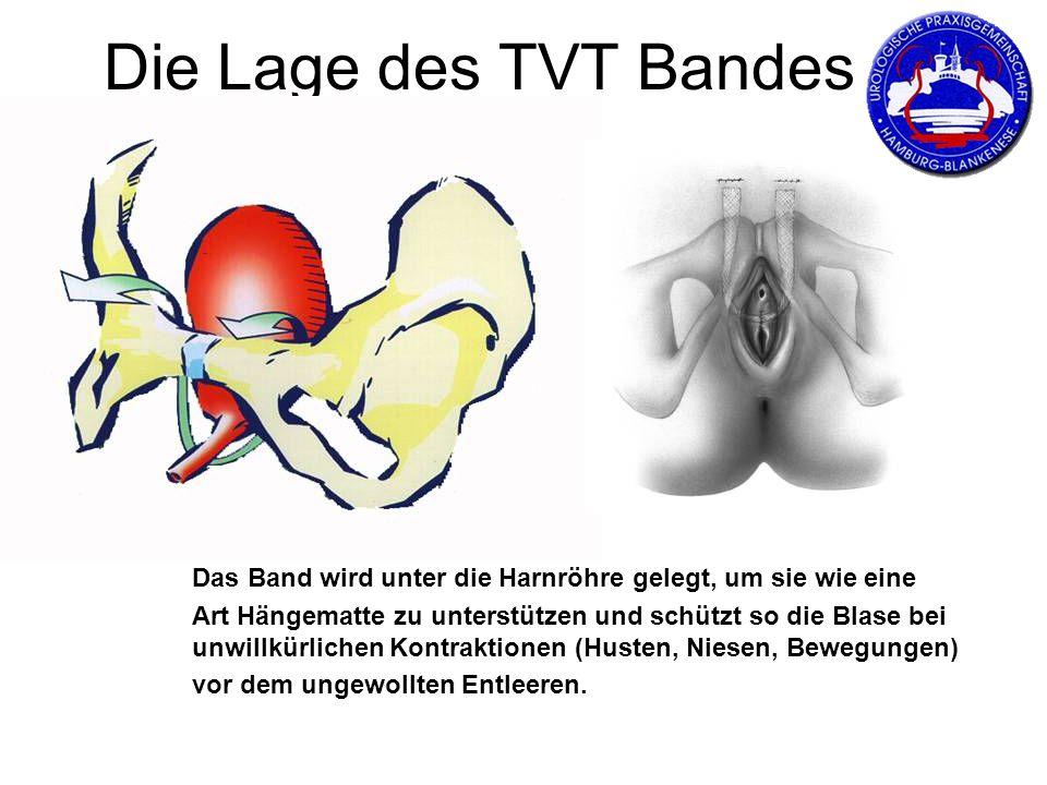 Die Lage des TVT Bandes Das Band wird unter die Harnröhre gelegt, um sie wie eine Art Hängematte zu unterstützen und schützt so die Blase bei unwillkürlichen Kontraktionen (Husten, Niesen, Bewegungen) vor dem ungewollten Entleeren.