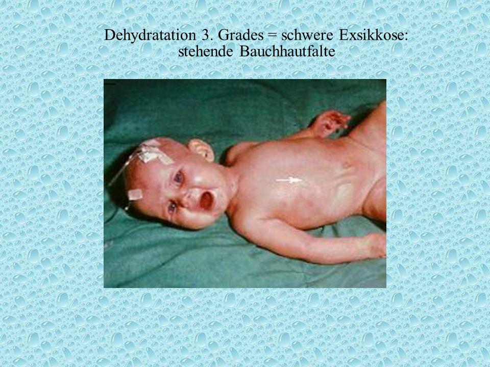 Dehydratation 3. Grades = schwere Exsikkose: stehende Bauchhautfalte