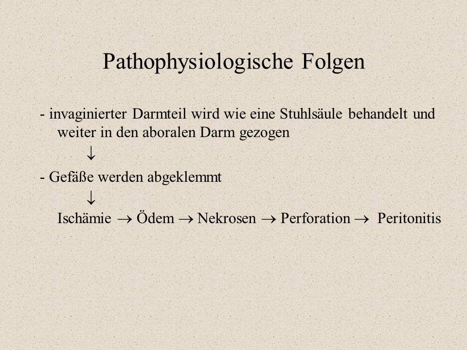 Pathophysiologische Folgen - invaginierter Darmteil wird wie eine Stuhlsäule behandelt und weiter in den aboralen Darm gezogen  - Gefäße werden abgek