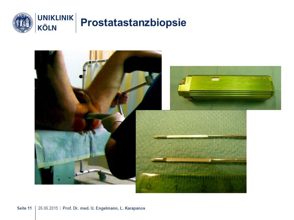Seite 11 26.06.2015 | Prof. Dr. med. U. Engelmann, L. Karapanos 11-21 Prostatastanzbiopsie