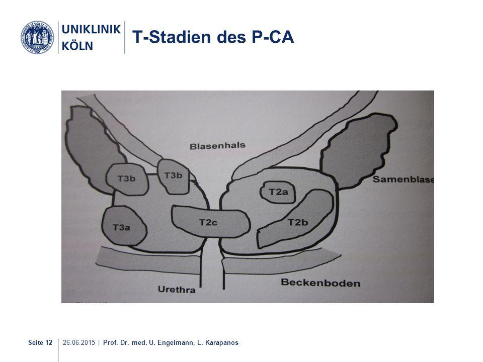 Seite 12 26.06.2015 | Prof. Dr. med. U. Engelmann, L. Karapanos T-Stadien des P-CA