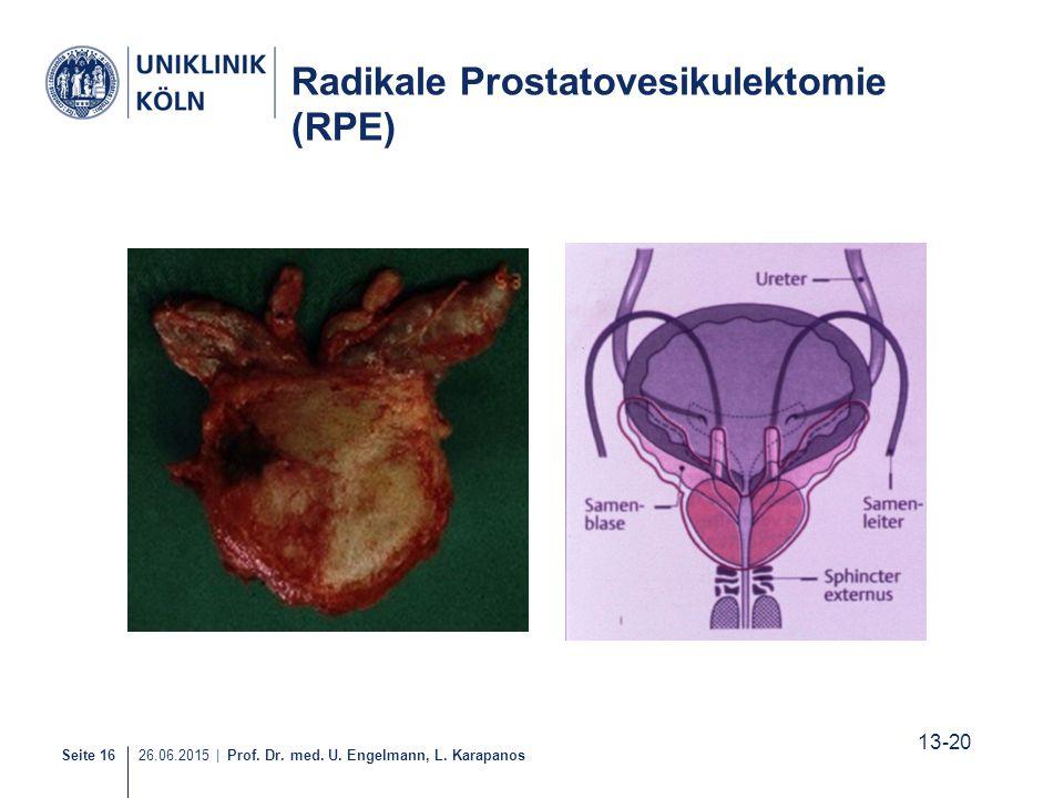 Seite 16 26.06.2015 | Prof. Dr. med. U. Engelmann, L. Karapanos Radikale Prostatovesikulektomie (RPE) 13-20 15-21