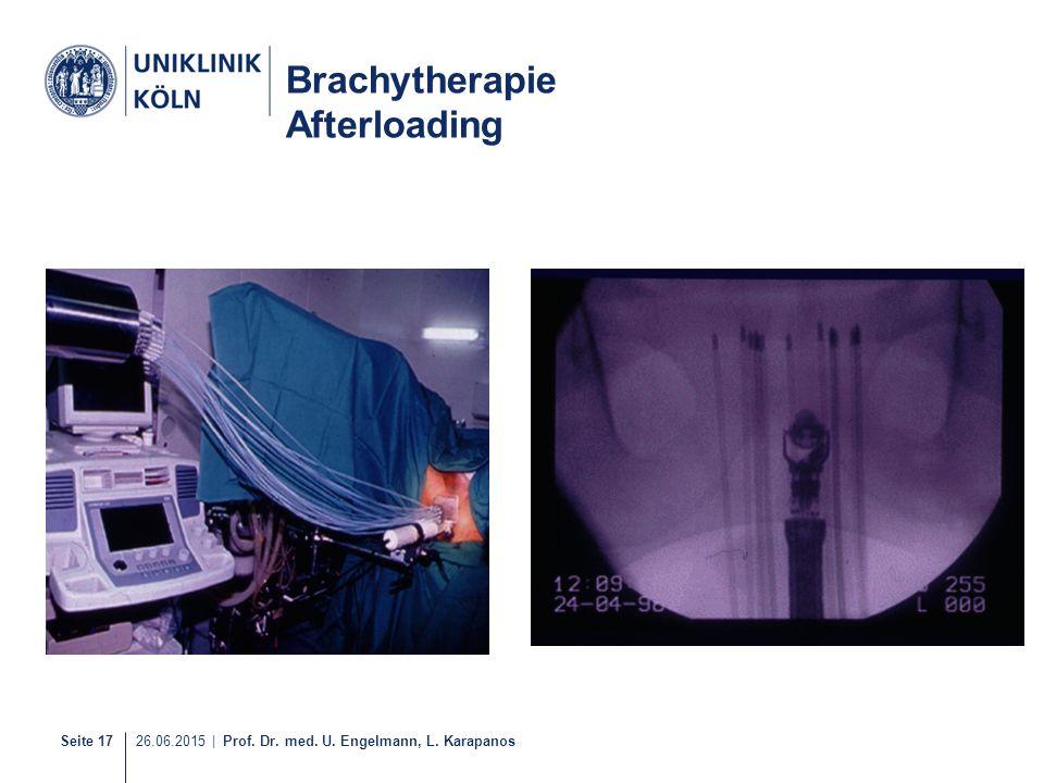Seite 17 26.06.2015 | Prof. Dr. med. U. Engelmann, L. Karapanos 16-21 Brachytherapie Afterloading