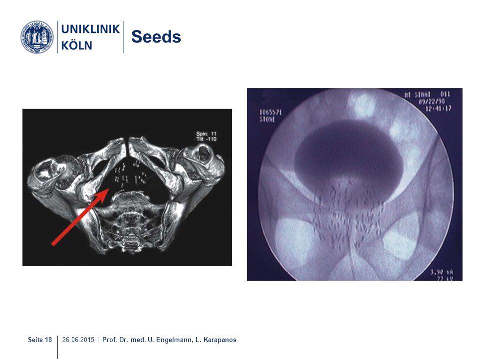 Seite 18 26.06.2015 | Prof. Dr. med. U. Engelmann, L. Karapanos 17-21 Seeds
