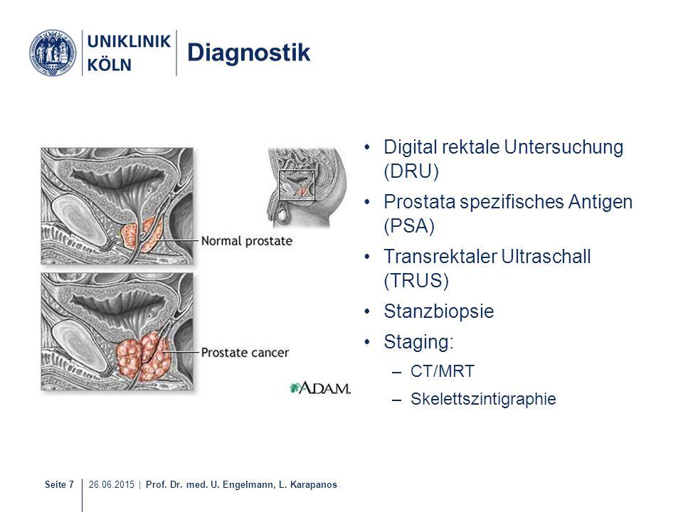 Seite 7 26.06.2015 | Prof. Dr. med. U. Engelmann, L. Karapanos Diagnostik Digital rektale Untersuchung (DRU) Prostata spezifisches Antigen (PSA) Trans