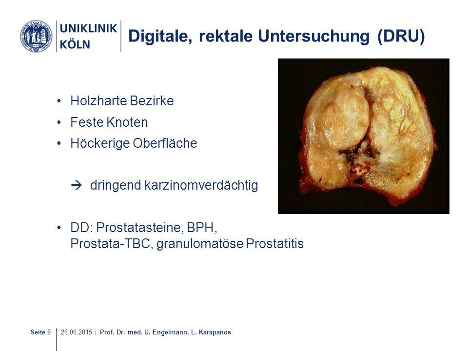 Seite 9 26.06.2015 | Prof. Dr. med. U. Engelmann, L. Karapanos 9-21 Digitale, rektale Untersuchung (DRU) Holzharte Bezirke Feste Knoten Höckerige Ober