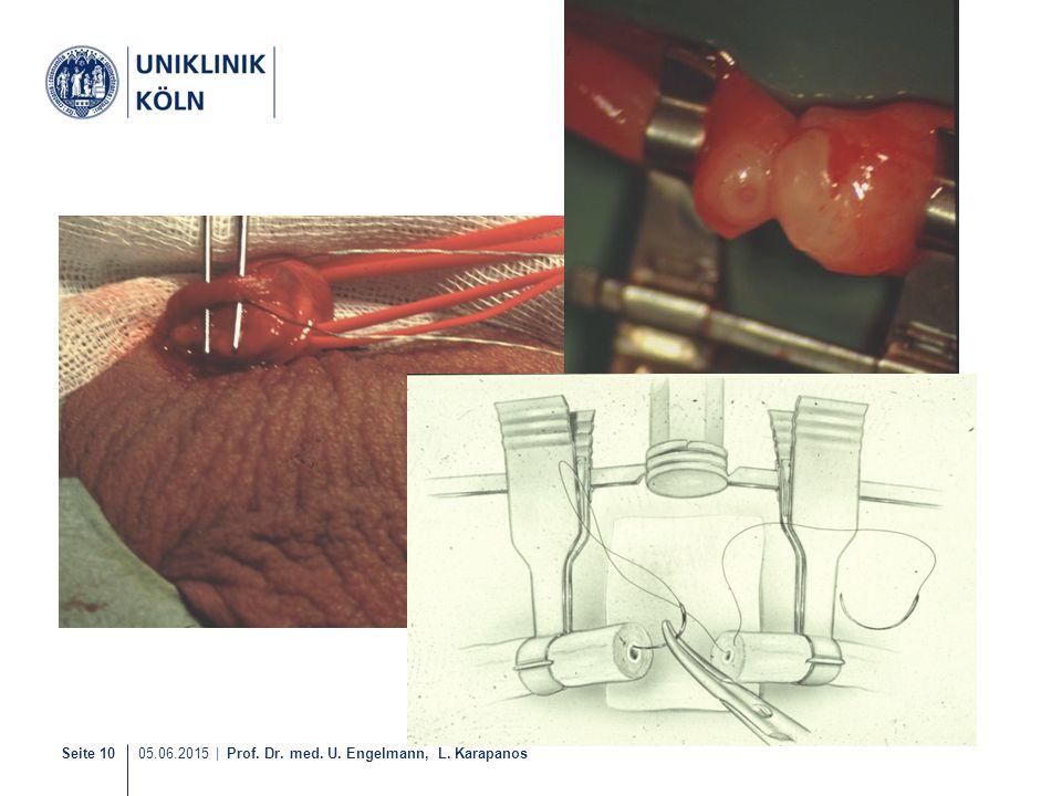 Seite 10 05.06.2015   Prof. Dr. med. U. Engelmann, L. Karapanos
