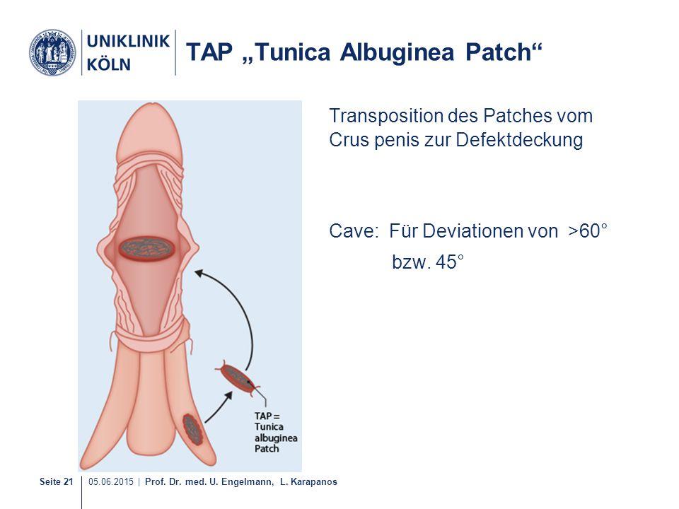 "Seite 21 05.06.2015   Prof. Dr. med. U. Engelmann, L. Karapanos TAP ""Tunica Albuginea Patch"" Transposition des Patches vom Crus penis zur Defektdeckun"