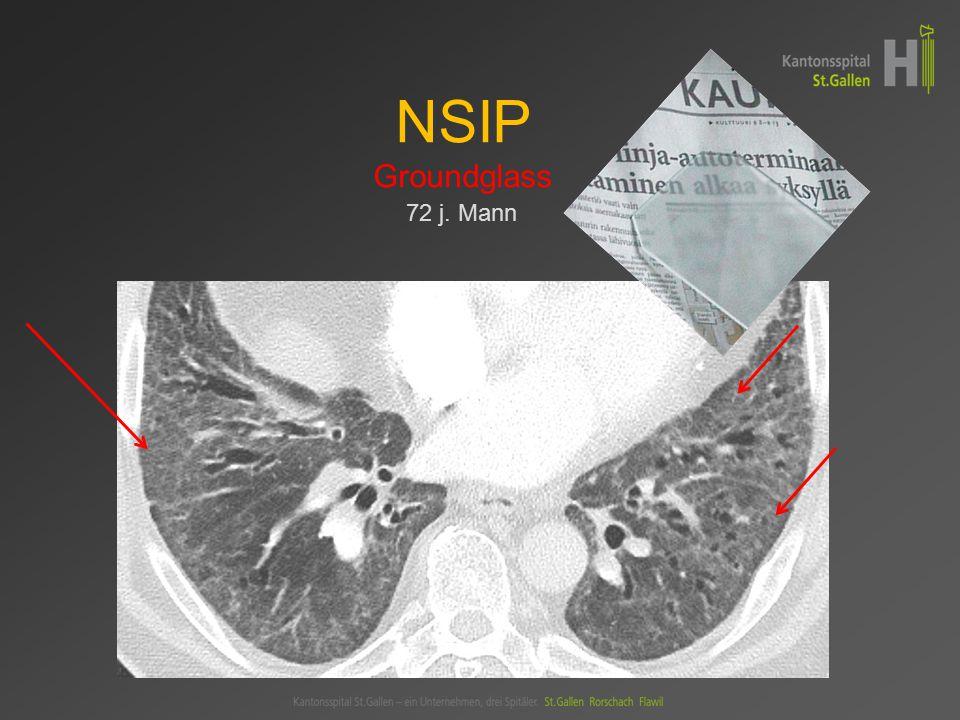NSIP Groundglass 72 j. Mann