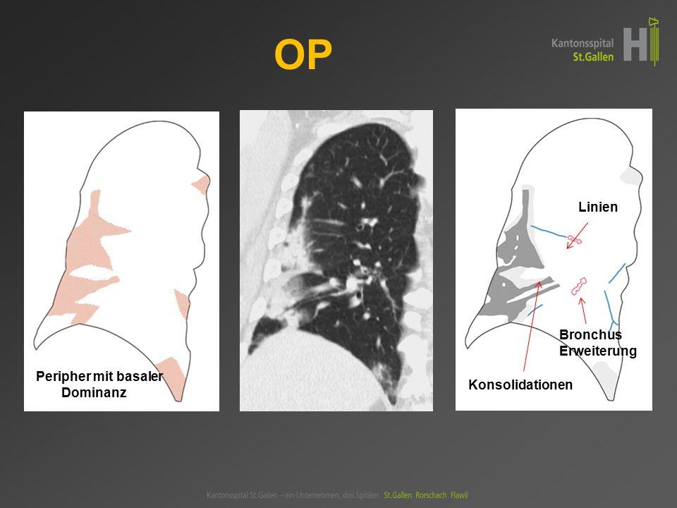 Peripher mit basaler Dominanz Linien Konsolidationen Bronchus- Erweiterung