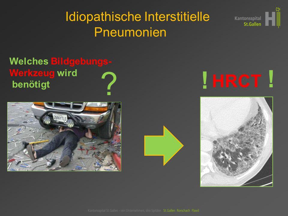 Organisierende Pneumonie HRCT-Muster  Konsolidationen +/- Pneumobronchogramm  Periphere + peribronchioläre Verteilung  Untere Lungenabschnitte bevorzugt, wandernd.
