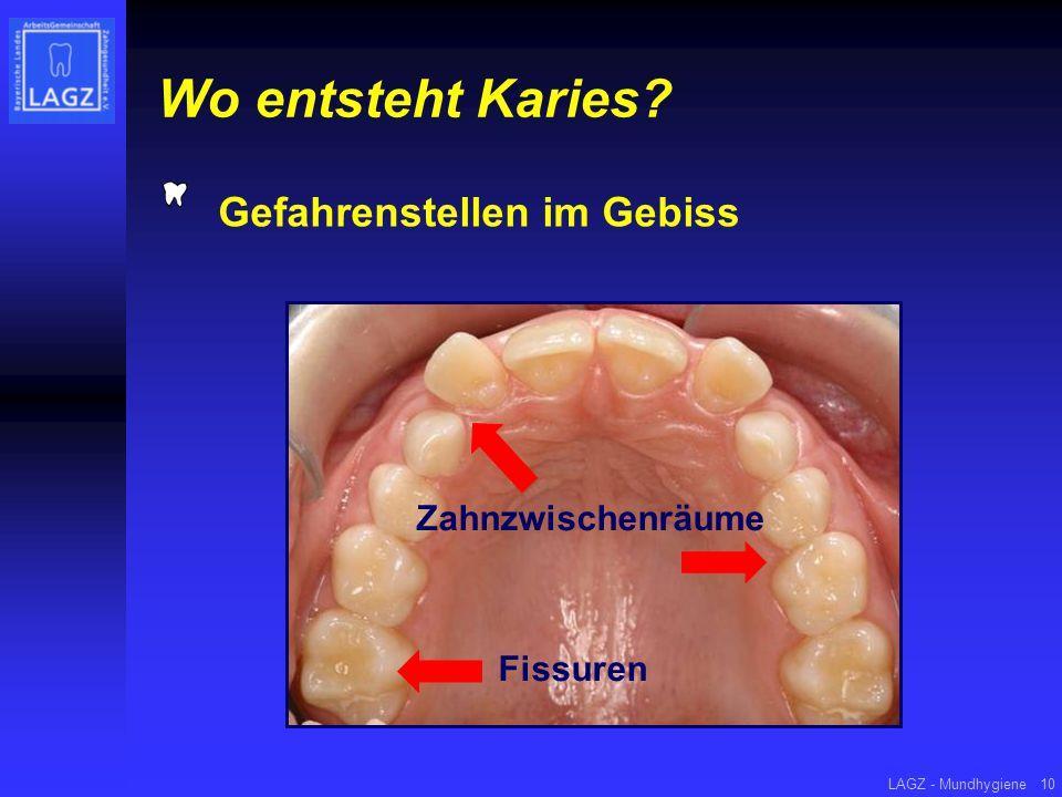 LAGZ - Mundhygiene10 Wo entsteht Karies? Gefahrenstellen im Gebiss Zahnzwischenräume Fissuren