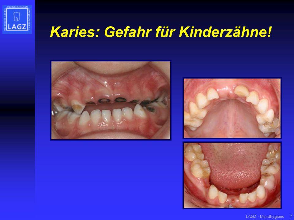 LAGZ - Mundhygiene7 Karies: Gefahr für Kinderzähne!