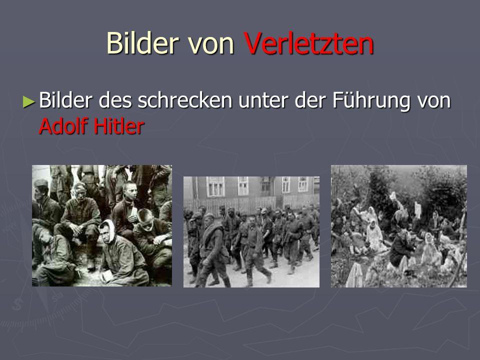 Bilder von Verletzten ► Bilder des schrecken unter der Führung von Adolf Hitler