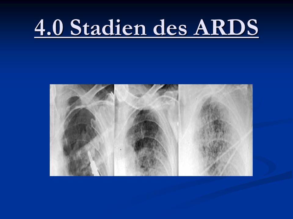 4.0 Stadien des ARDS