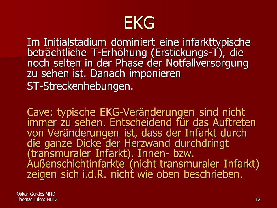 Oskar Gerdes MHD Thomas Eilers MHD12 EKG Im Initialstadium dominiert eine infarkttypische beträchtliche T-Erhöhung (Erstickungs-T), die noch selten in