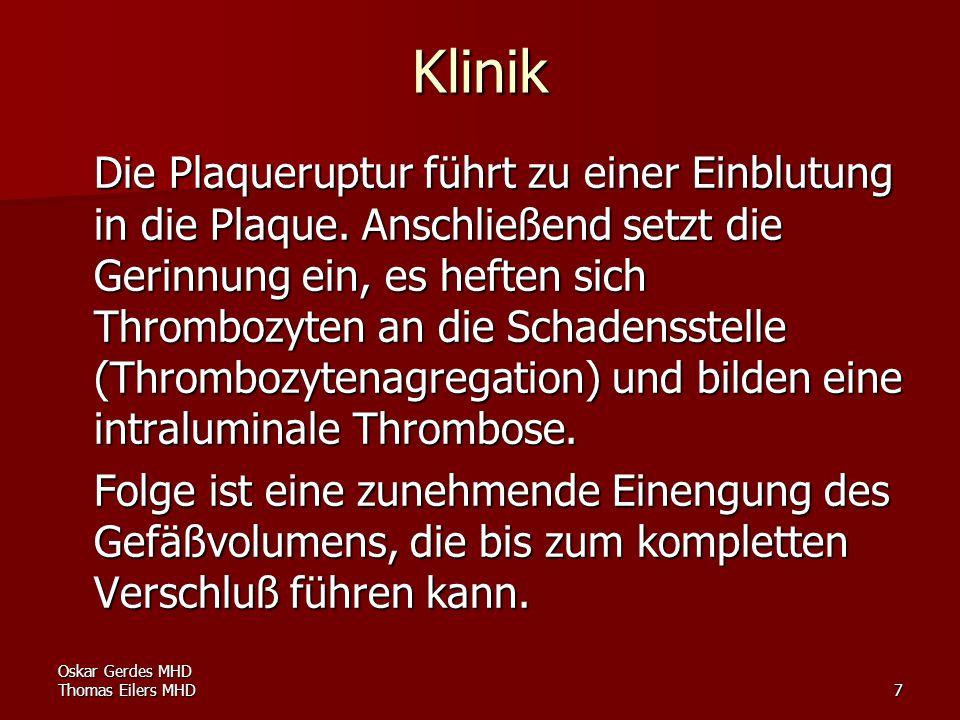 Oskar Gerdes MHD Thomas Eilers MHD8 Durch die entstehende Ischämie am Myokard werden Nährstoffe nicht mehr vollständig verbrannt, es fallen saure Stoffwechsel - endprodukte an, die, bedingt durch die Verengung bzw.