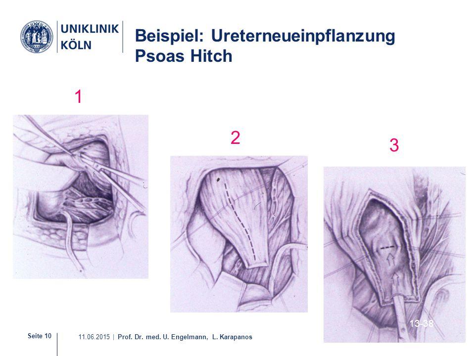 Seite 10 11.06.2015 | Prof. Dr. med. U. Engelmann, L. Karapanos 13-38 1 2 3 Beispiel: Ureterneueinpflanzung Psoas Hitch
