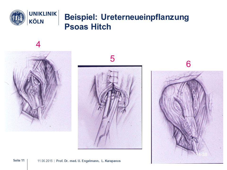 Seite 11 11.06.2015 | Prof. Dr. med. U. Engelmann, L. Karapanos Beispiel: Ureterneueinpflanzung Psoas Hitch 14-38 4 5 6