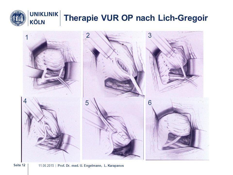 Seite 12 11.06.2015 | Prof. Dr. med. U. Engelmann, L. Karapanos Therapie VUR OP nach Lich-Gregoir 21-36 1 4 32 5 6