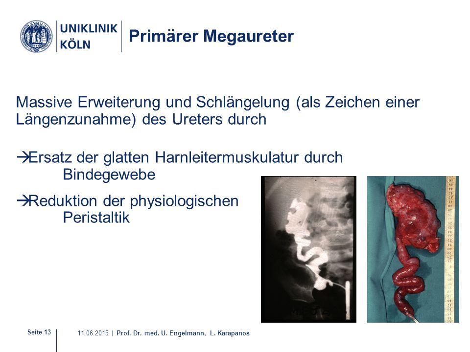 Seite 13 11.06.2015 | Prof. Dr. med. U. Engelmann, L. Karapanos Primärer Megaureter Massive Erweiterung und Schlängelung (als Zeichen einer Längenzuna