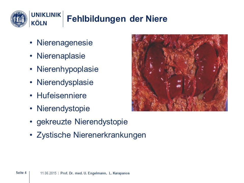 Seite 4 11.06.2015 | Prof. Dr. med. U. Engelmann, L. Karapanos Fehlbildungen der Niere Nierenagenesie Nierenaplasie Nierenhypoplasie Nierendysplasie H