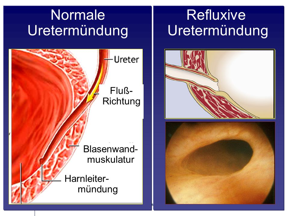Seite 8 11.06.2015 | Prof. Dr. med. U. Engelmann, L. Karapanos Refluxive Uretermündung Fluß- Richtung Blasenwand- muskulatur Harnleiter- mündung Norma