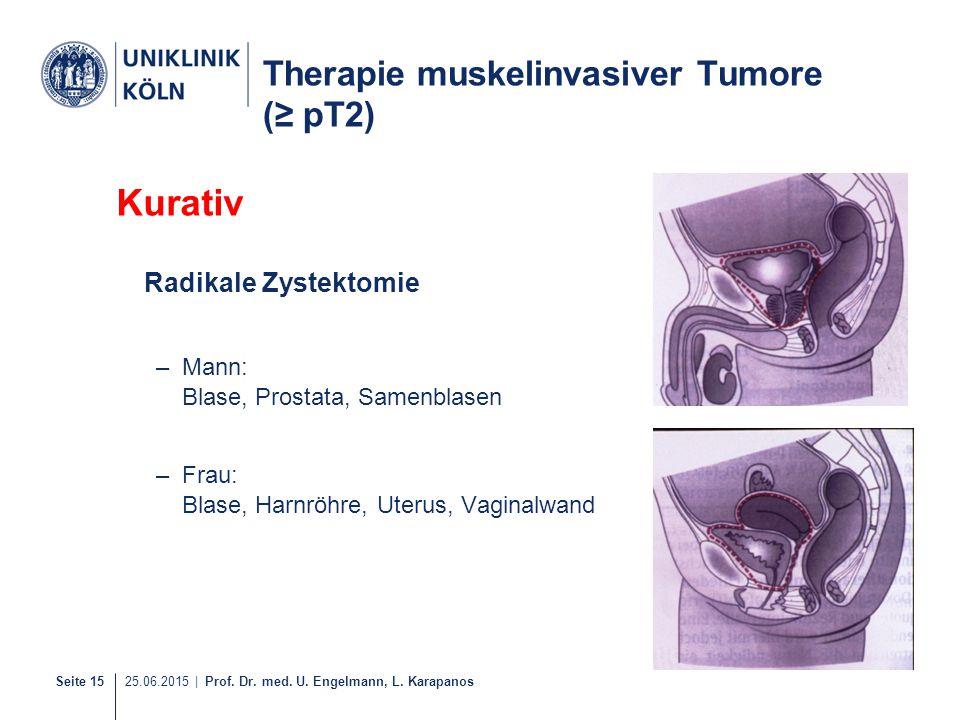 Seite 15 25.06.2015 | Prof. Dr. med. U. Engelmann, L. Karapanos Therapie muskelinvasiver Tumore (≥ pT2) Kurativ Radikale Zystektomie –Mann: Blase, Pro