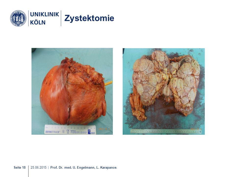Seite 18 25.06.2015 | Prof. Dr. med. U. Engelmann, L. Karapanos Zystektomie