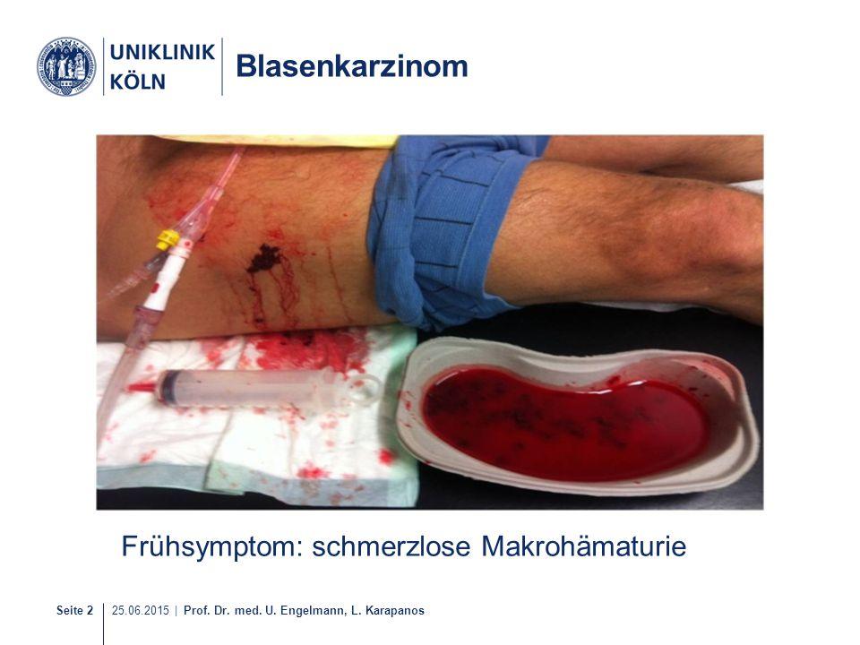 Seite 2 25.06.2015 | Prof. Dr. med. U. Engelmann, L. Karapanos Frühsymptom: schmerzlose Makrohämaturie Blasenkarzinom