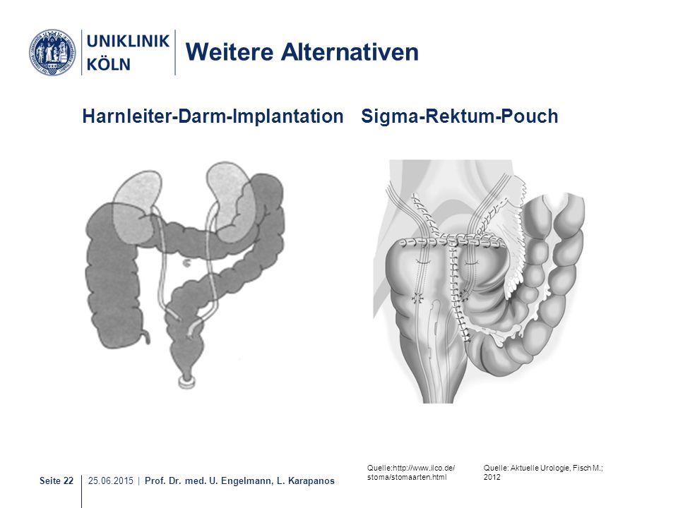 Seite 22 25.06.2015 | Prof. Dr. med. U. Engelmann, L. Karapanos Harnleiter-Darm-ImplantationSigma-Rektum-Pouch Weitere Alternativen Quelle: Aktuelle U