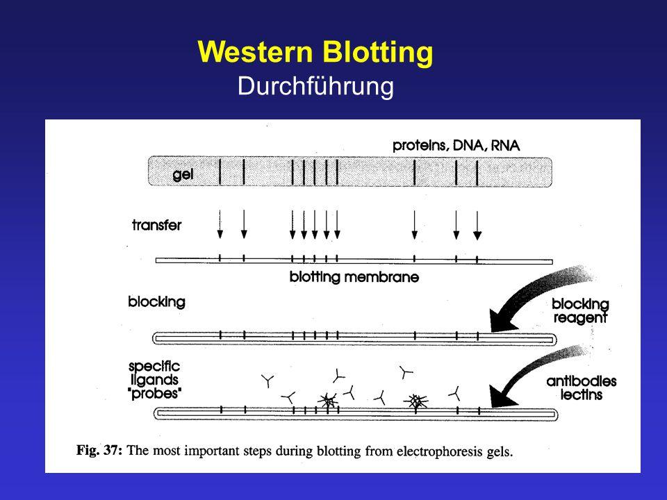 Western Blotting Durchführung