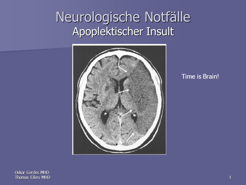 Oskar Gerdes MHD Thomas Eilers MHD1 Neurologische Notfälle Apoplektischer Insult Time is Brain!