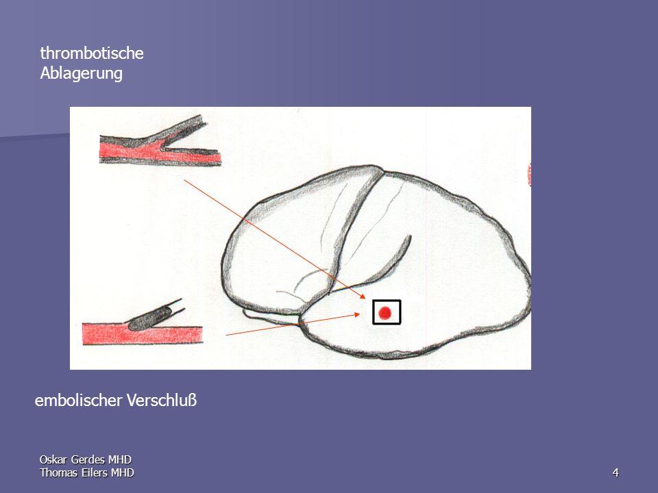 Oskar Gerdes MHD Thomas Eilers MHD15 Progressive stroke: neurologisches Defizit nimmt über Stunden bis Tage zu, ohne oder mit nur unvollständiger Rückbildung Complete stroke bzw.