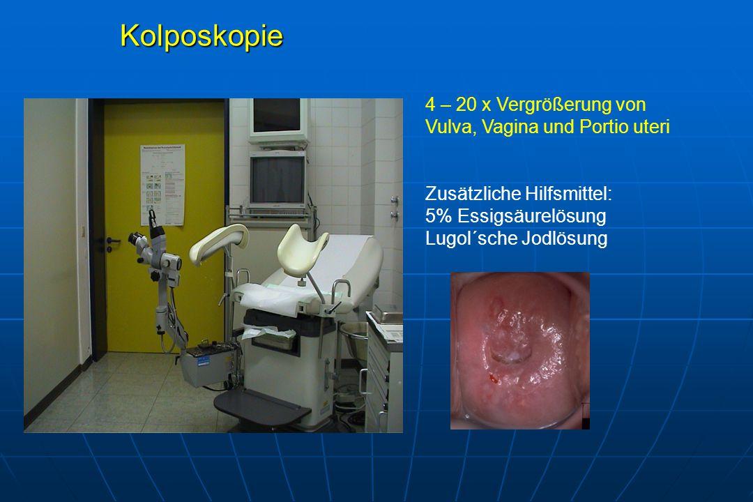 Kolposkopie 4 – 20 x Vergrößerung von Vulva, Vagina und Portio uteri Zusätzliche Hilfsmittel: 5% Essigsäurelösung Lugol´sche Jodlösung