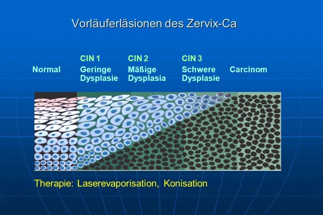 CIN 1CIN 2CIN 3 NormalGeringeMäßigeSchwereCarcinom DysplasieDysplasiaDysplasie Vorläuferläsionen des Zervix-Ca Therapie: Laserevaporisation, Konisation