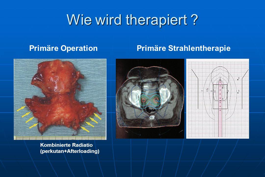 Primäre StrahlentherapiePrimäre Operation Kombinierte Radiatio (perkutan+Afterloading)