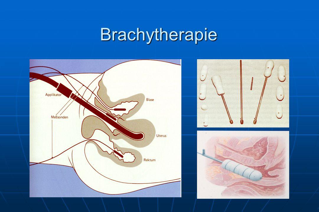 Brachytherapie